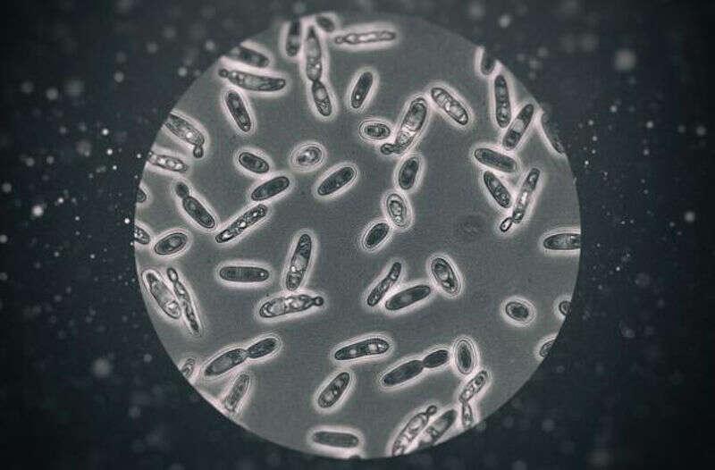 Brettanomyces visto al microscopio