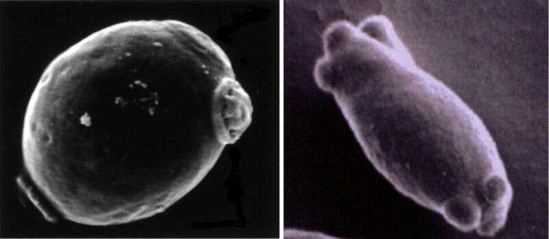 In dettaglio Saccharomyces (a sinistra) e Brett (a destra)